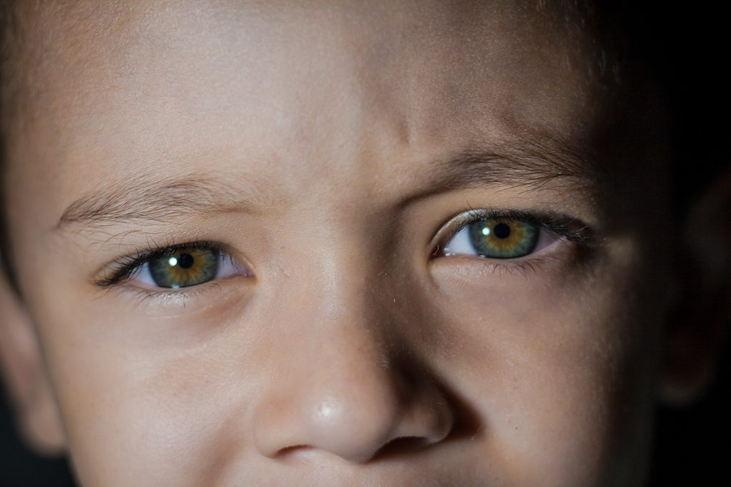 The boy with brown green eyes should take part in an early care to check if he has a vision disorder.